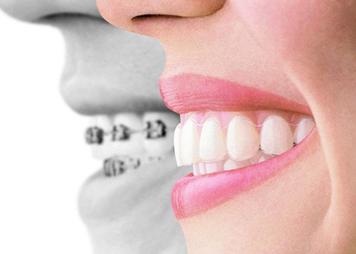Индивидуальные капы для зубов
