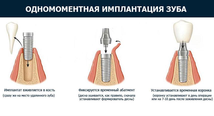 Имплантация зубов в день удаления