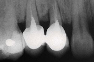 Прицельный снимок зубов