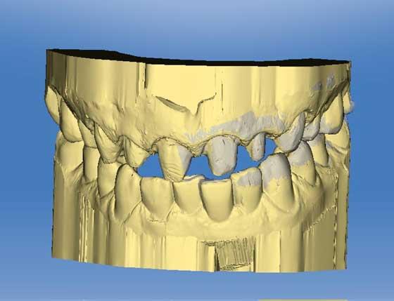 3 D Визуализация при протезировании зубов