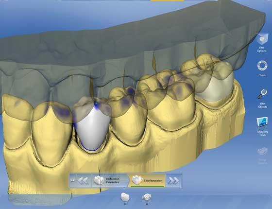 3 Д планирование протезирования зубов