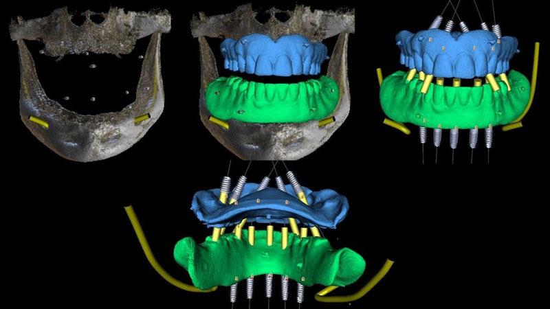 3D визуализация до начала протезирования