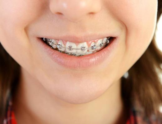 Чистка зубов пескоструйным аппаратом