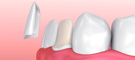 Виниры на зуб при повышенной стираемости зубов