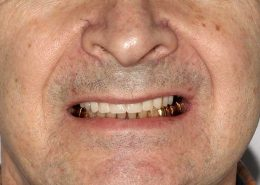 """Временные акриловые """"зубы"""" установлены на следующий день после имплантации"""